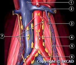 Para Aortic Lymph Nodes