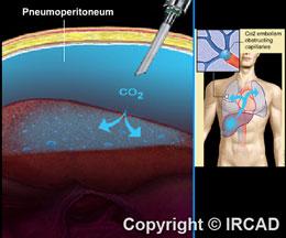 The Insufflator In Laparoscopy Websurg The E Surgical